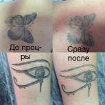 удаление тату и татуажа, Новосибирск