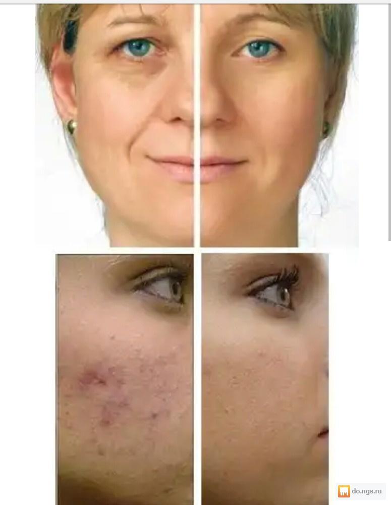 клиническую ординатуру карбоновый пилинг фото до и после отзывы толстым